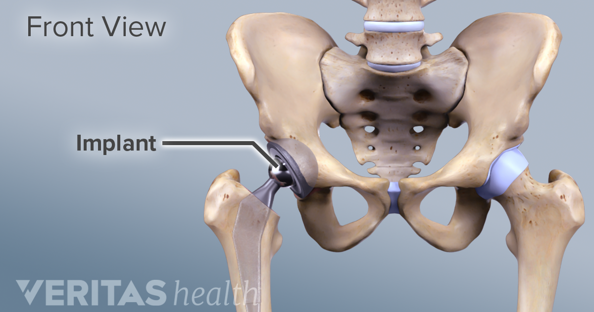 Get a better life after your Hip replacement therapy